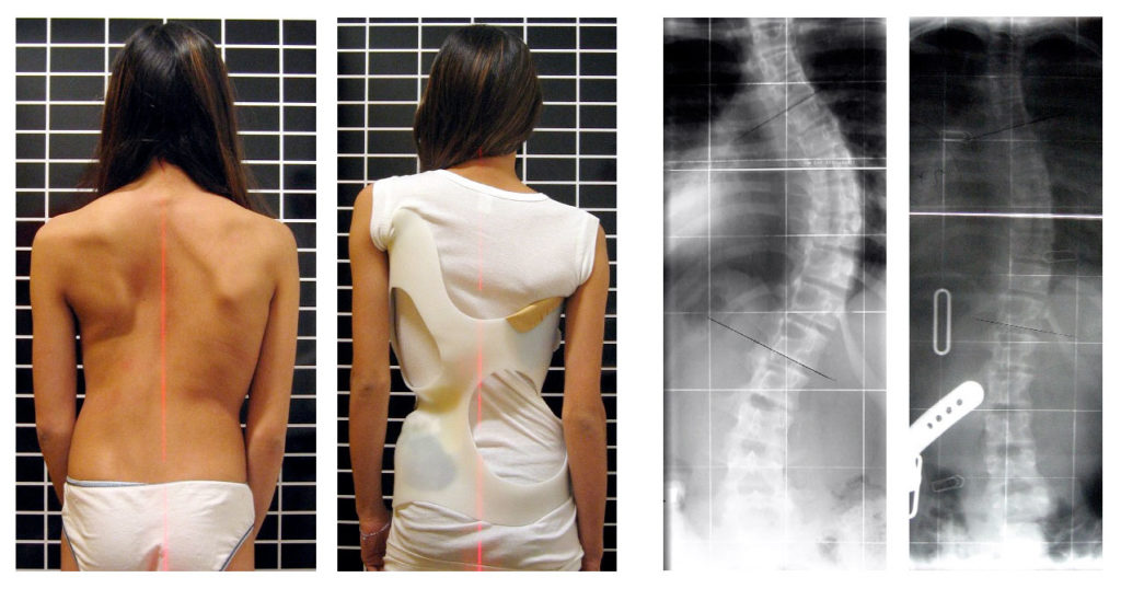 Types of Back Braces for Pain, Scoliosis, and Posture